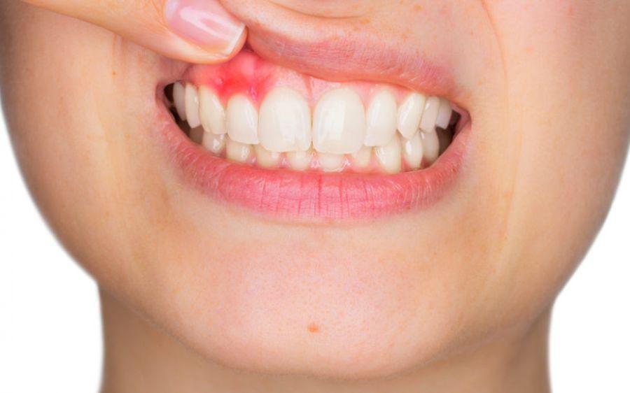 Parodontie et soins de la gencives